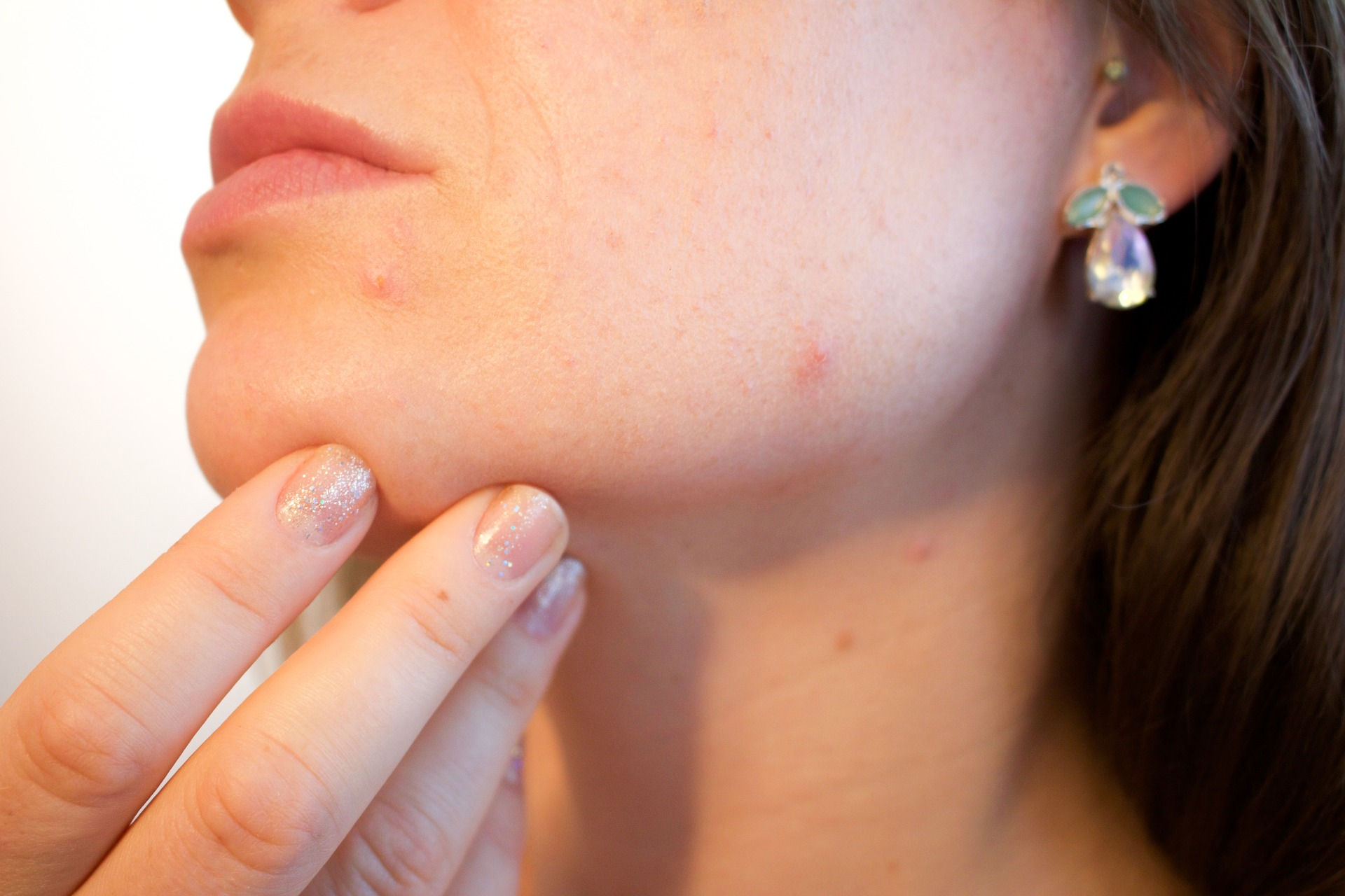 Why a vegan diet for acne