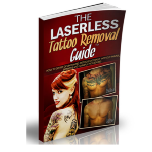 The laserless removal guide