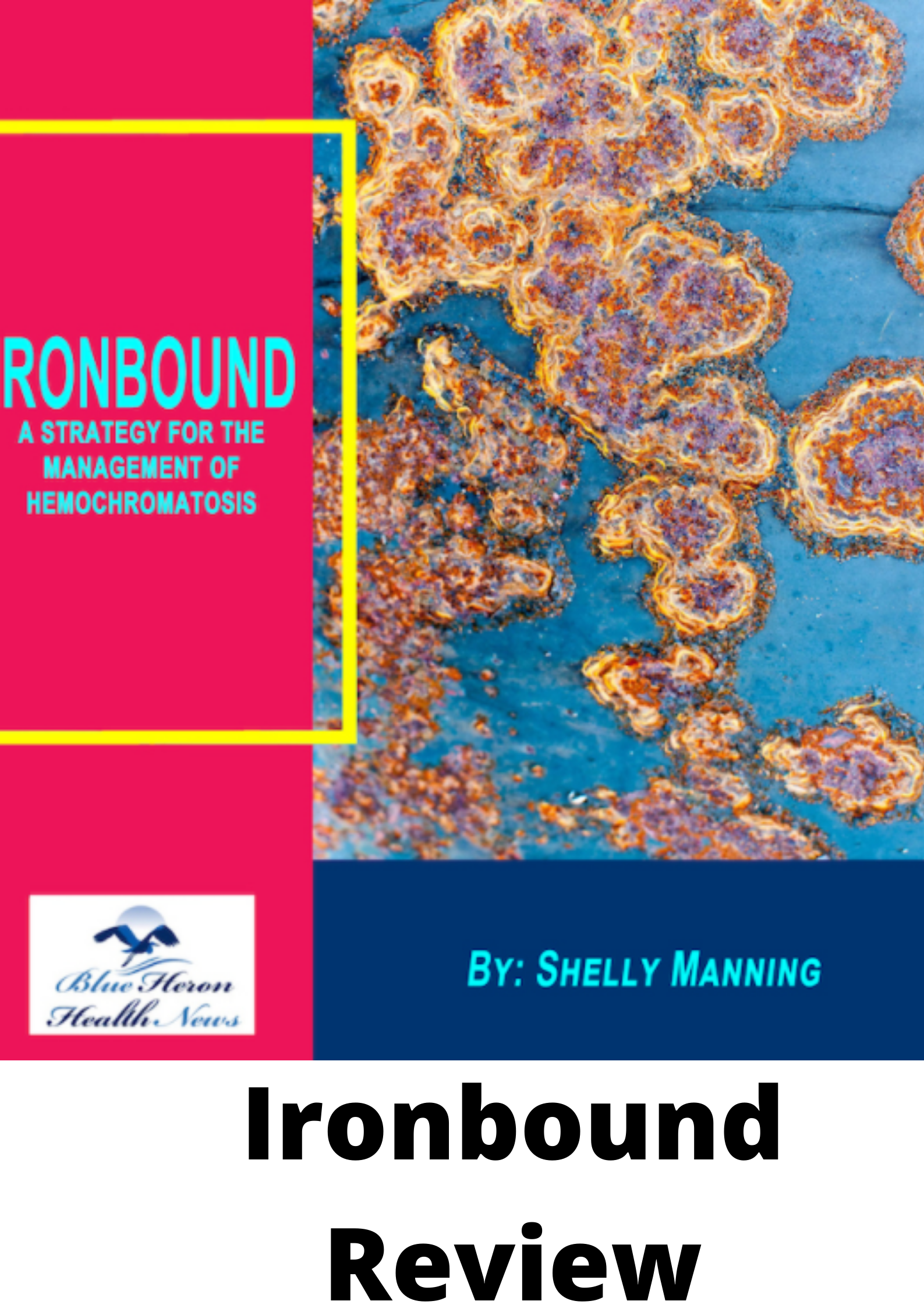 Ironbound Review- A strategy for management of hemochromatosis
