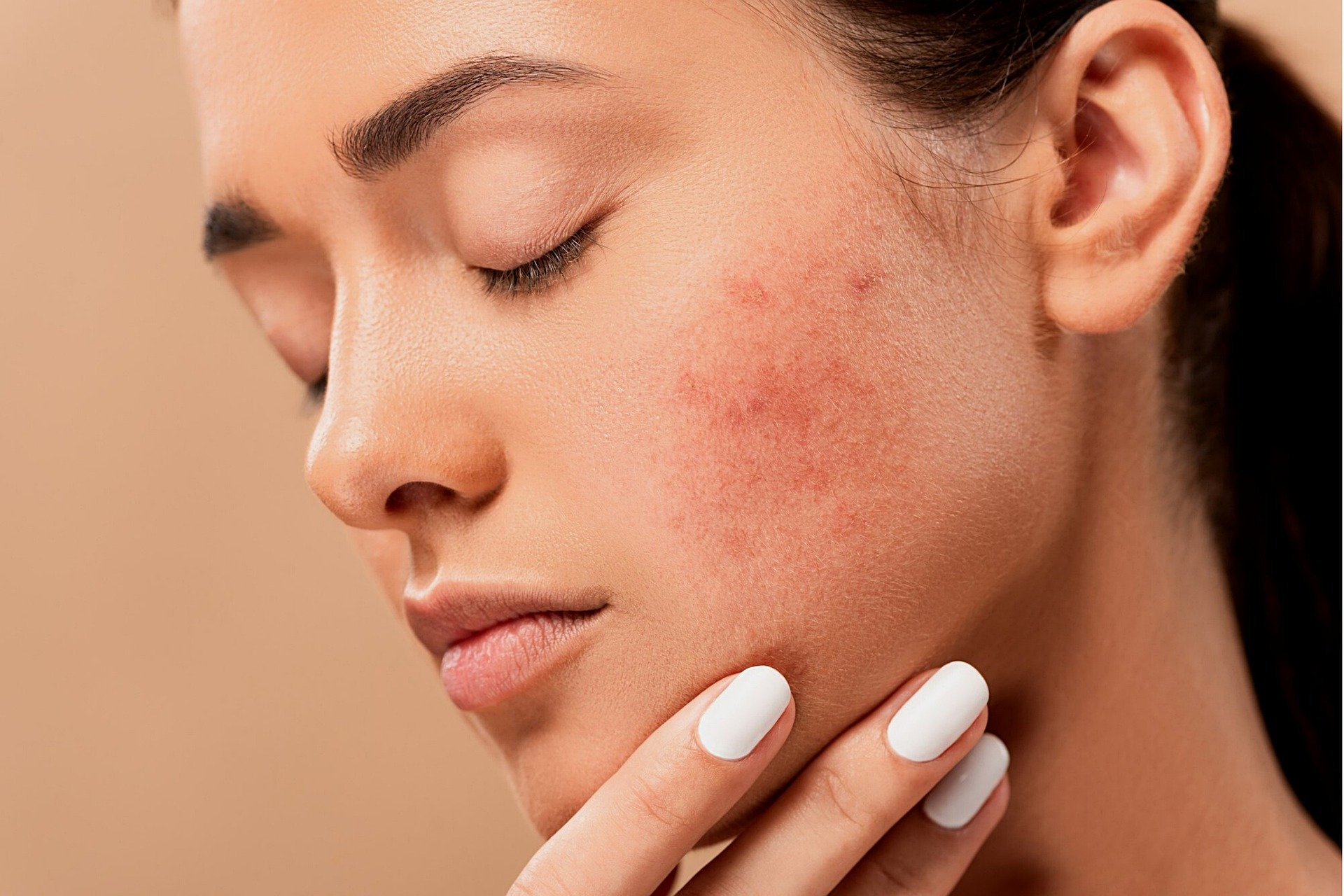 Is vegan good for your skin?